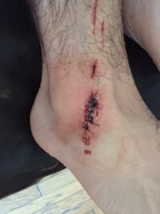 Josh Green received 18 stitches after an apparent shark bite